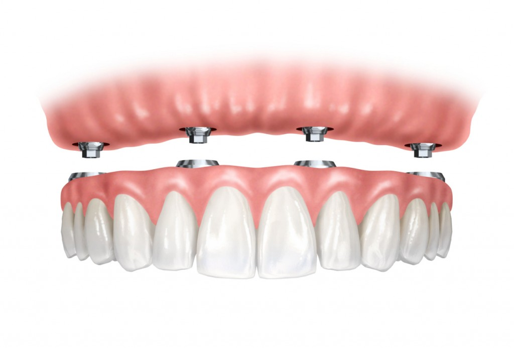 Benefits of Ceramic Dental Implants for the Elderly