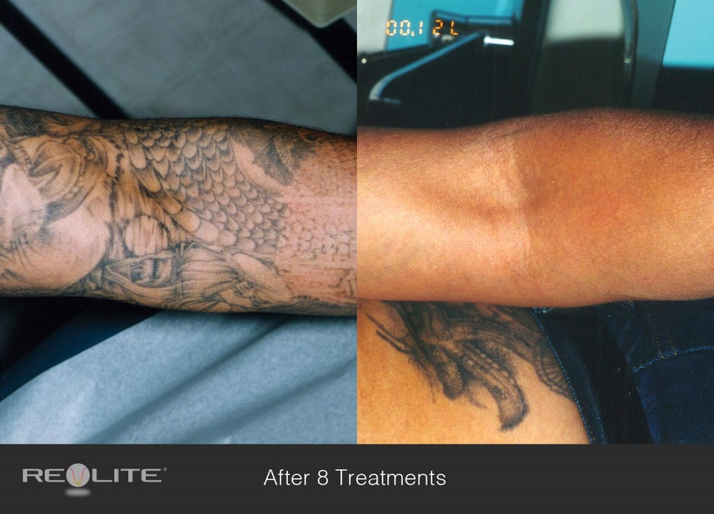 Laser tattoo removal risks side effects and costs for Tattoo removal business