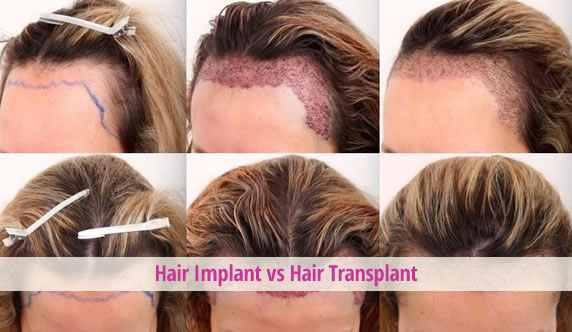 Hair-Implant-Transplant