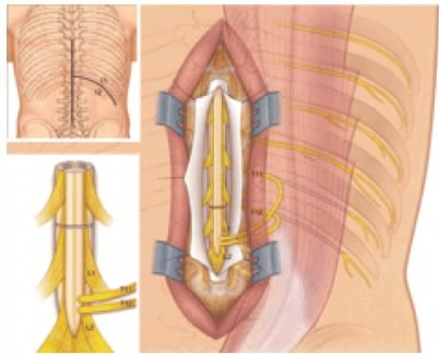 Spinal-Cord-Surgery