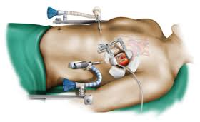 Cardiac Surgeons3