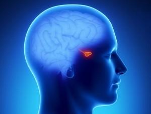 Pituitary-Adenoma_937
