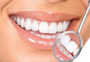 dental-whitening