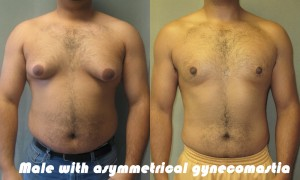 Male with Asymmetrical Gynecomastia