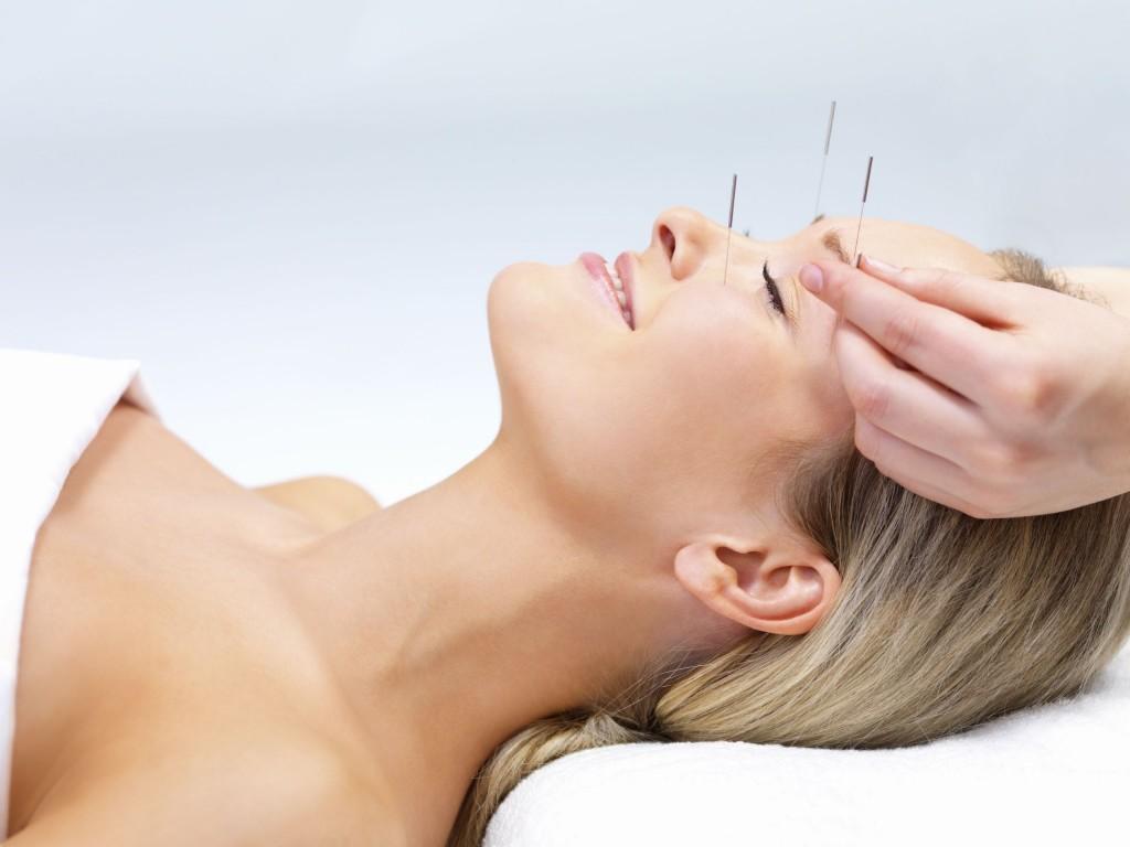 Acupuncture therapy-alternative medicine