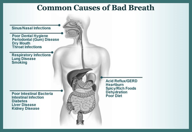 common-cause-of-bad-breath, Human Body