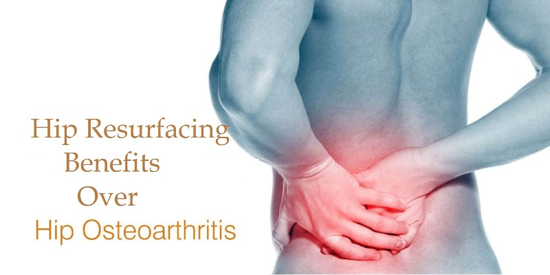 Total Hip Resurfacing Benefits Over Osteoarthritis Of The Hip