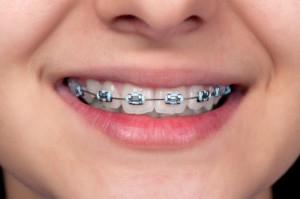 How to Convince Your Child to Wear Braces in 7 Ways