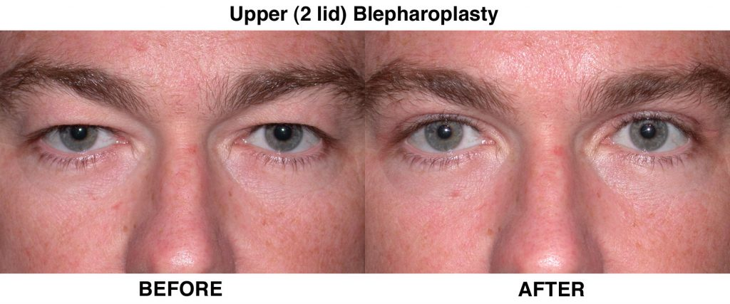 Blepharoplasty – An Overview
