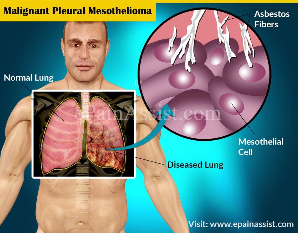 Paul Kraus – Surviving Mesothelioma the Alternative Way