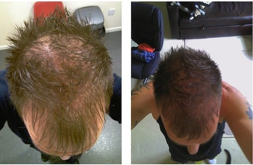 How FUE Hair Transplant is done?