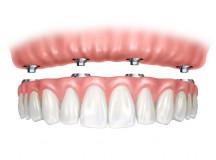 Benefits of Ceramic Dental Implants for the Elderly
