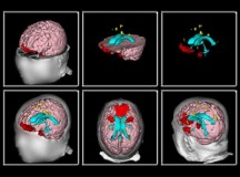 3D PDF Brain Imaging and Its Application in Court Trials