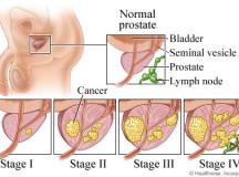 Prostate Cancer-Disorder Summary