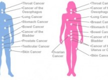 Battle with Cancer-Types of Surgeries