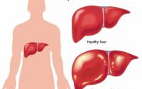 The Danger of Hepatitis and How It can be Caused