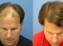 Fue hair transplant: a confirmed answer of hair loss