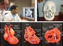 3D Printing is Giving Healthcare a Whole New Dimension