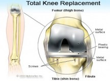 Best Places for Knee Replacement