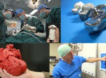 3D Printing Makes Life Changing Surgeries Possible