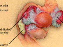 Risk Factors, Symptoms and Prevention of Pelvic Inflammatory Disease