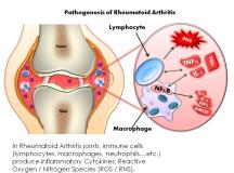 Rheumatoid Arthritis and Essential Safety Measures