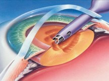 Cataract Surgery: Tips to a Speedy and Safe Recovery