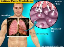 Paul Kraus – Surviving Mesothelioma the Alternative Way