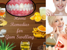 Causes And Treatments For Gums Inflammation