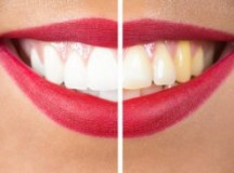 How can you get whiter teeth naturally?
