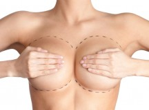 10 Things you Should Ask your Doctor before Getting a Boob Job
