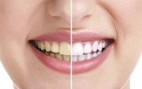 What Causes Tooth Stains and How to Whiten Teeth