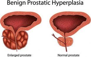 Understanding Cause Prostate Cancer – Symptoms