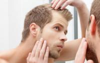 5 Tips to Stop Hair Loss at a Young Age
