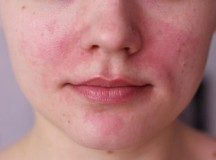 The Best Natural Face Moisturizers for Rosacea