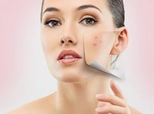 How to Pass Post-Partum Acne