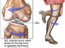 ACL Injuries and Surgery