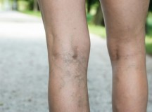 How Varicose Veins Laser Surgery Works