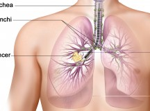 The Connection Between Smoking & Lung Cancer