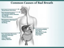 Common Causes of Bad Breath