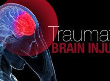 Hyperbaric Oxygen Therapy can Remedy Traumatic Brain Injury