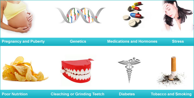 causes of Gum disease