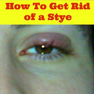 10 Natural Home Remedies for Stye In Your Eyes