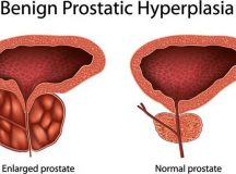 Understanding Cause Prostate Cancer – Symptoms
