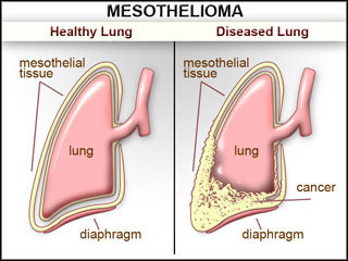 What Everyone Must Know About Mesothelioma Cancer