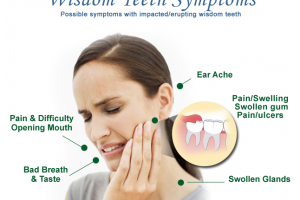 5 Practical Reasons Why You May Need Wisdom Teeth Removal