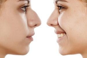 4 Different Types of Rhinoplasty Surgeries