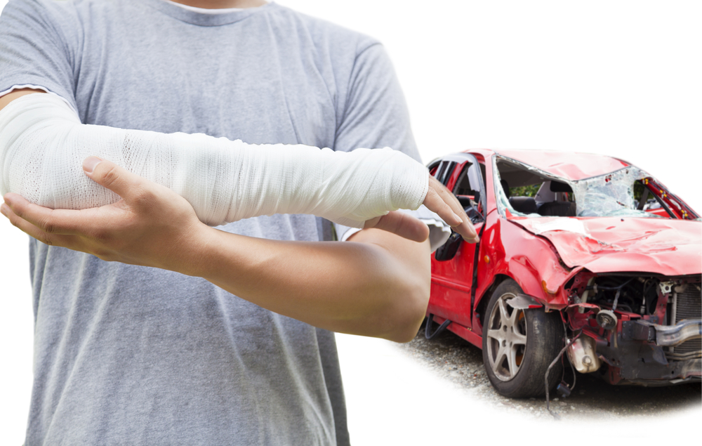 Tips to Find the Right Representation after an Injury