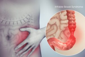 Herbal and Natural Remedies for IBS (Irritable Bowel Syndrome)