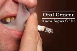 Warning Signs of Oral Cancer